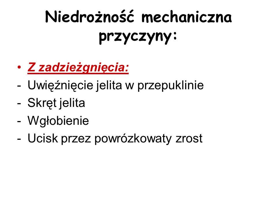 Niedrożność mechaniczna przyczyny: Z zadzieżgnięcia: -Uwięźnięcie jelita w przepuklinie -Skręt jelita -Wgłobienie -Ucisk przez powrózkowaty zrost