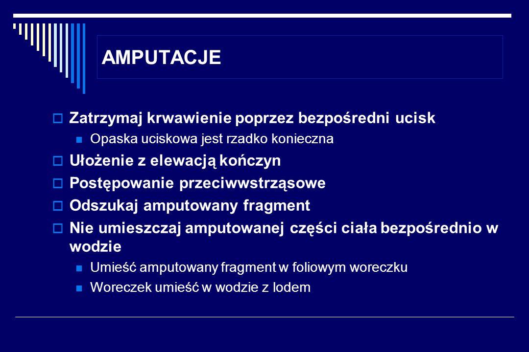 AMPUTACJE Zatrzymaj krwawienie poprzez bezpośredni ucisk Opaska uciskowa jest rzadko konieczna Ułożenie z elewacją kończyn Postępowanie przeciwwstrząs