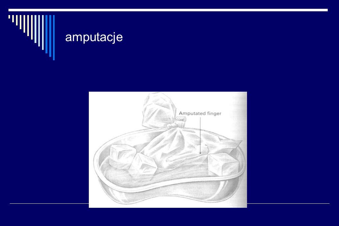 amputacje