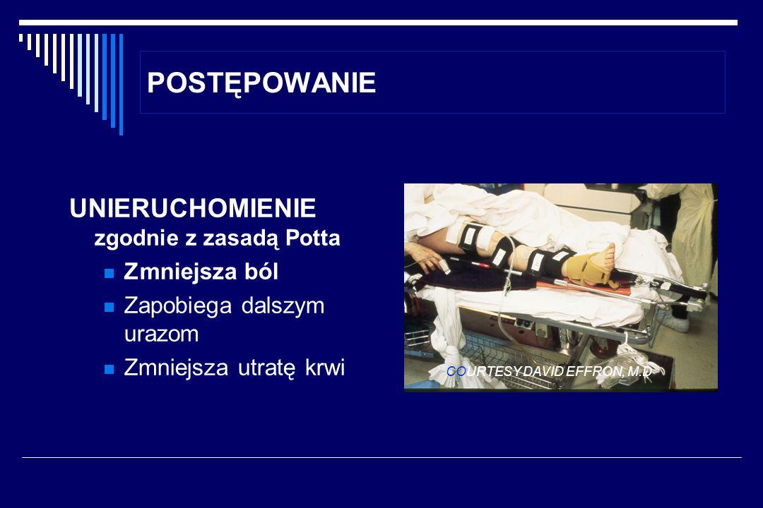 POSTĘPOWANIE UNIERUCHOMIENIE zgodnie z zasadą Potta Zmniejsza ból Zapobiega dalszym urazom Zmniejsza utratę krwi COURTESY DAVID EFFRON, M.D.
