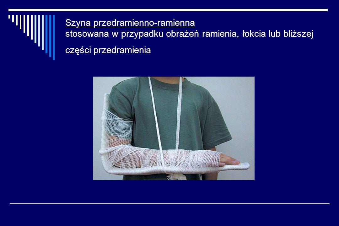 Szyna przedramienno-ramienna stosowana w przypadku obrażeń ramienia, łokcia lub bliższej części przedramienia