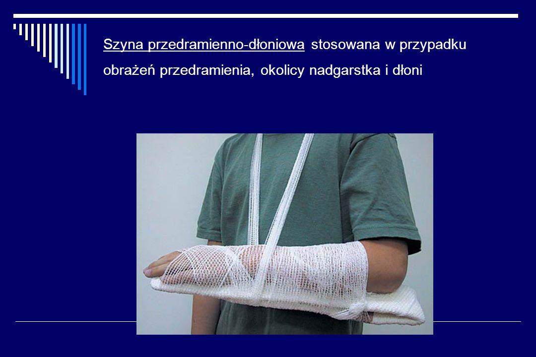 Szyna przedramienno-dłoniowa stosowana w przypadku obrażeń przedramienia, okolicy nadgarstka i dłoni