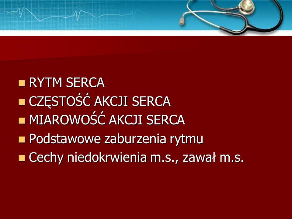 Częstoskurcz komorowy – zapis EKG