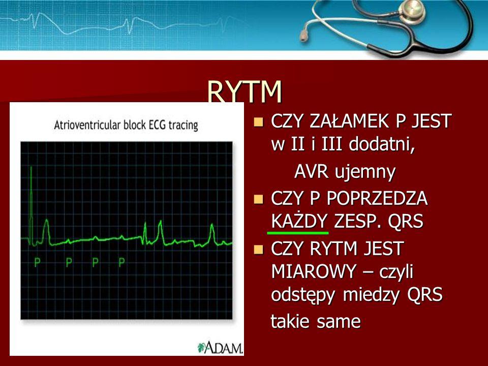 Tachykardia zatokowa RZM, o częstości >100/ min RZM, o częstości >100/ min Może być spowodowana wysiłkiem, niepokojem, hipowolemią… Może być spowodowana wysiłkiem, niepokojem, hipowolemią…