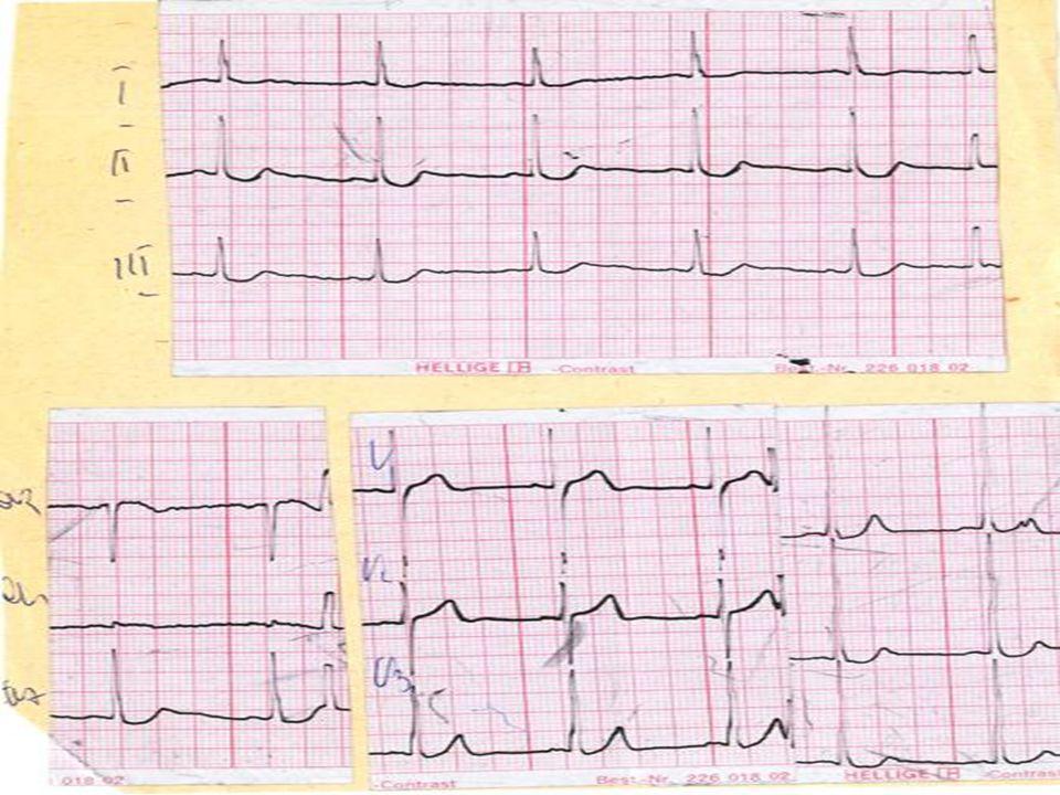 Asystolia Asystolia Brak czynności elektrycznej serca co w zapisie EKG objawia się w postaci linii zbliżonej do linii izoelektrycznej w co najmniej dwu sąsiadujących odprowadzeniach.