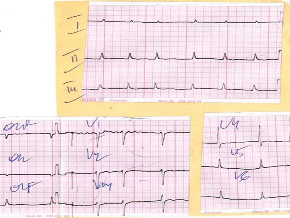 Blok lewej odnogi pęczka Hisa Kryteria ] Zespół QRS poszerzony > 0,12 s ] Zespół QRS w odprowadzeniach V5, V6 zniekształcony, zazębiony (kształt M), brak załamka q w tych odprowadzeniach ] Przeciwstawny kierunek odcinka ST i załamka T w stosunku do największego wychylenia zespołu QRS w odprowadzeniach V 5, V6.