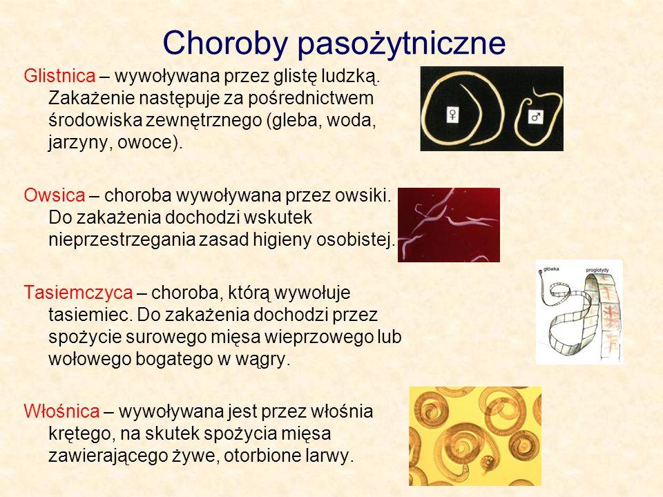 Choroby pasożytniczne Glistnica – wywoływana przez glistę ludzką.
