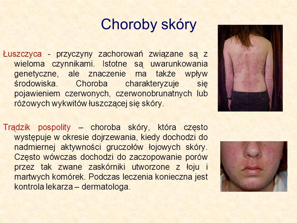 Choroby skóry Łuszczyca - przyczyny zachorowań związane są z wieloma czynnikami.