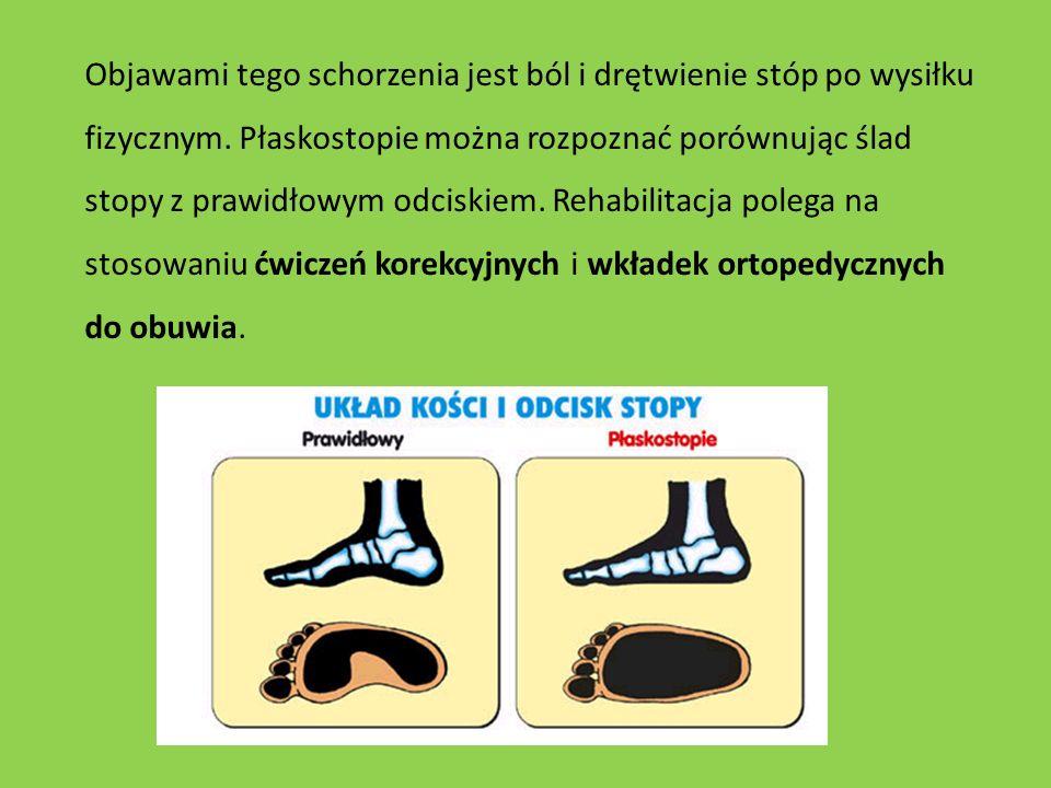 Objawami tego schorzenia jest ból i drętwienie stóp po wysiłku fizycznym. Płaskostopie można rozpoznać porównując ślad stopy z prawidłowym odciskiem.