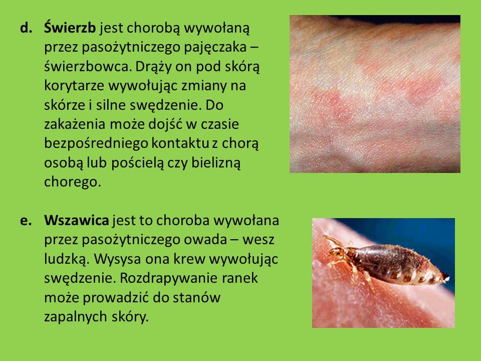 d.Świerzb jest chorobą wywołaną przez pasożytniczego pajęczaka – świerzbowca. Drąży on pod skórą korytarze wywołując zmiany na skórze i silne swędzeni