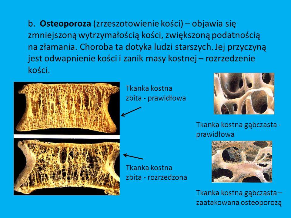 b. Osteoporoza (zrzeszotowienie kości) – objawia się zmniejszoną wytrzymałością kości, zwiększoną podatnością na złamania. Choroba ta dotyka ludzi sta