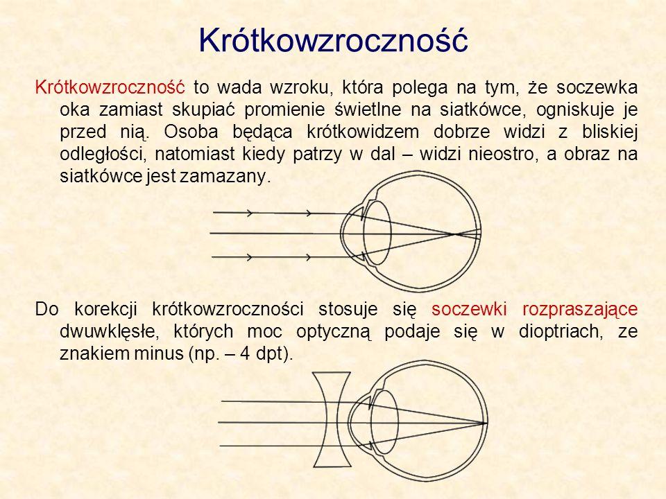 Krótkowzroczność Krótkowzroczność to wada wzroku, która polega na tym, że soczewka oka zamiast skupiać promienie świetlne na siatkówce, ogniskuje je p