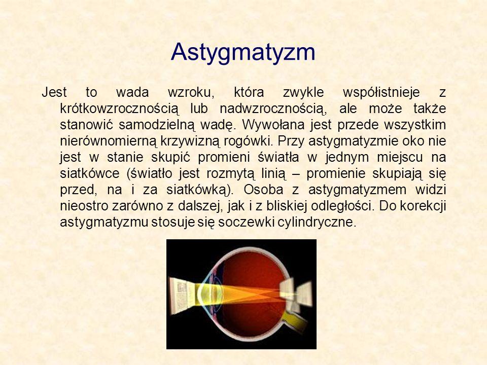 Astygmatyzm Jest to wada wzroku, która zwykle współistnieje z krótkowzrocznością lub nadwzrocznością, ale może także stanowić samodzielną wadę. Wywoła