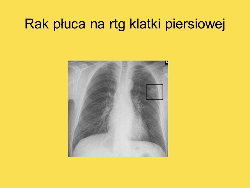 Rak płuca na tomografii klatki piersiowej