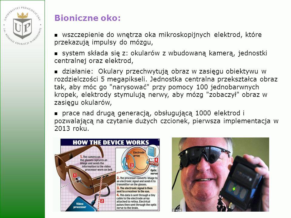 Jolanta Zielińska Bioniczne oko: wszczepienie do wnętrza oka mikroskopijnych elektrod, które przekazują impulsy do mózgu, system składa się z: okularó