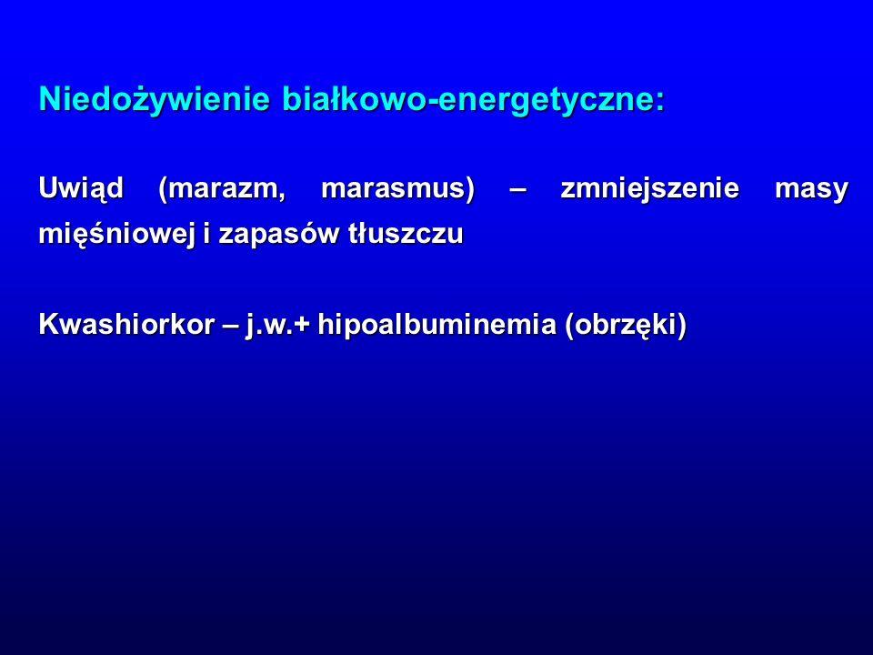 Niedożywienie białkowo-energetyczne: Uwiąd (marazm, marasmus) – zmniejszenie masy mięśniowej i zapasów tłuszczu Kwashiorkor – j.w.+ hipoalbuminemia (o