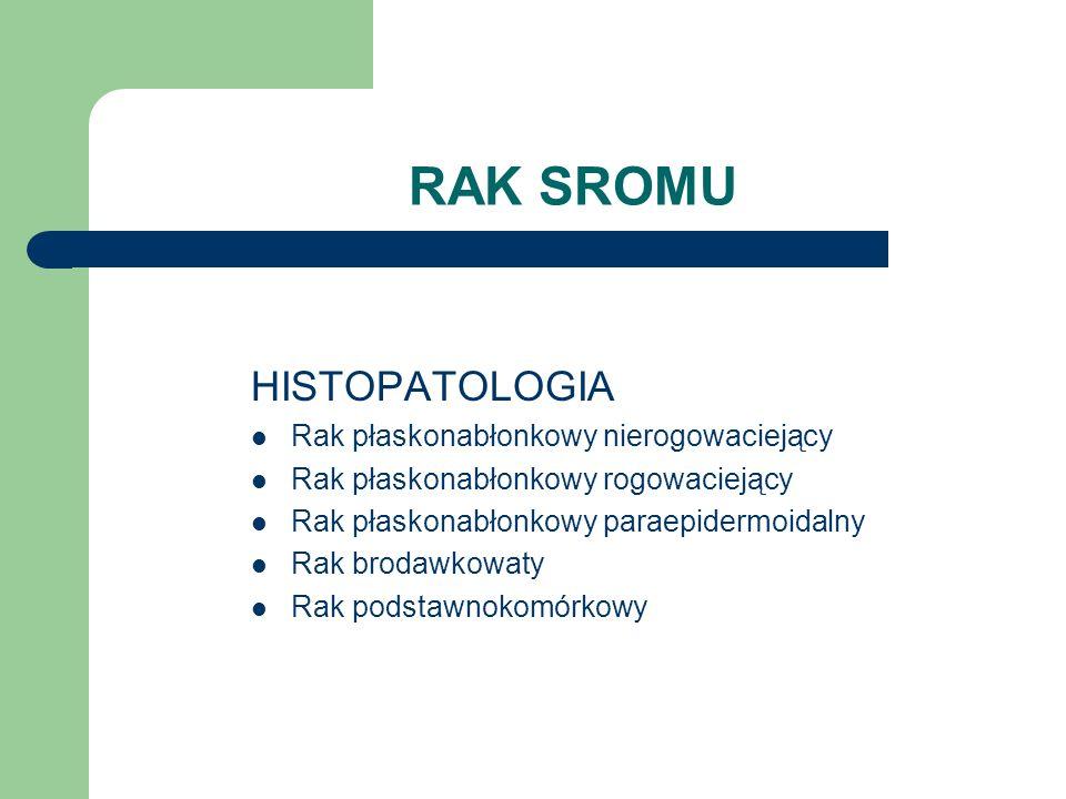 RAK SROMU HISTOPATOLOGIA Rak płaskonabłonkowy nierogowaciejący Rak płaskonabłonkowy rogowaciejący Rak płaskonabłonkowy paraepidermoidalny Rak brodawko