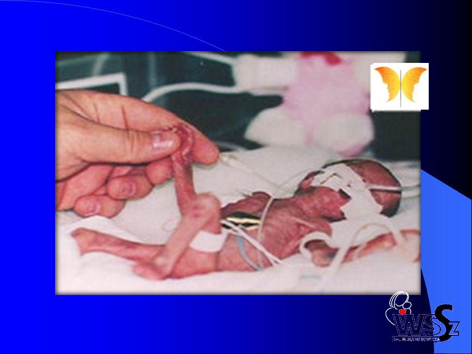 Wiek ciążowy oraz obecność lub brak cech wrodzonej infekcji powinny determinować postępowanie z pacjentką z przedwczesnym odpływaniem płynu owodniowego.
