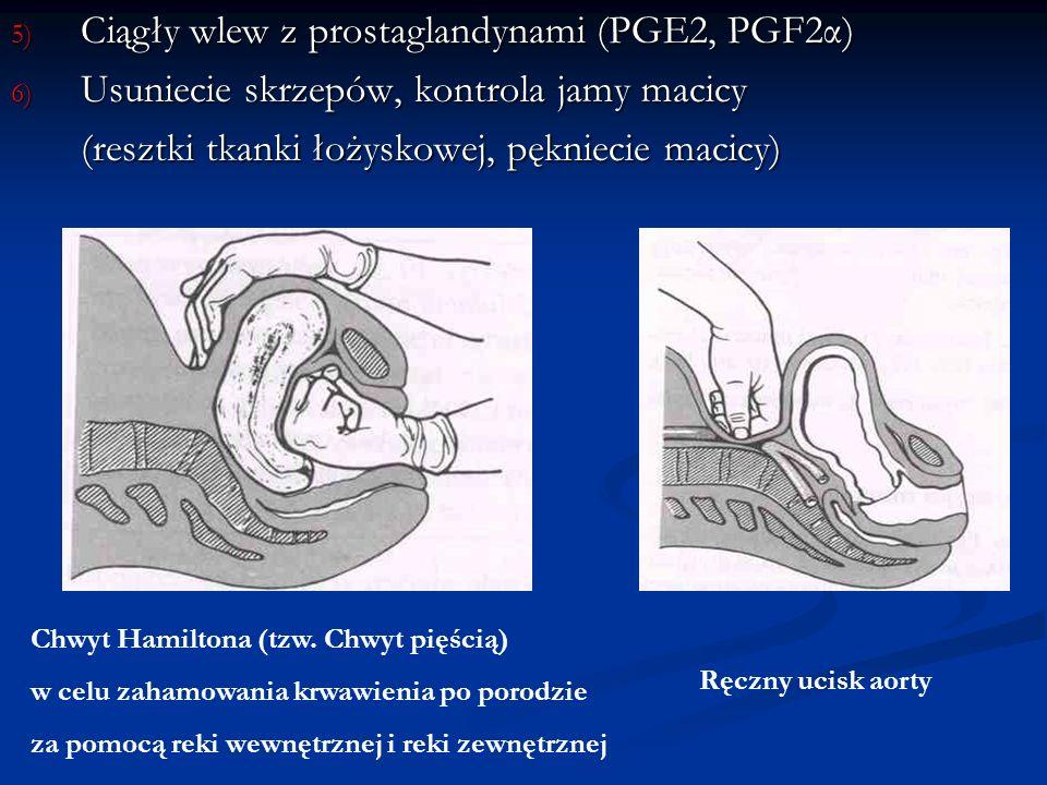 5) Ciągły wlew z prostaglandynami (PGE2, PGF2α) 6) Usuniecie skrzepów, kontrola jamy macicy (resztki tkanki łożyskowej, pękniecie macicy) Chwyt Hamilt
