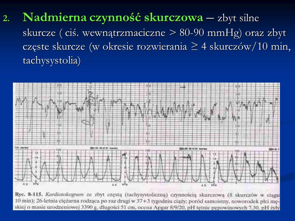 Krwawienia atoniczne - postępowanie Wycięcie macicy- ostateczność Wycięcie macicy- ostateczność 8) Leczenie wstrząsu, zaburzeń krzepnięcia (ostry zespół krwotoczny, koagulopatia) ( HES, FFP, Heparyna 10 000-15 000 jm./24h, antytrombina III 1 jm./kg mc., aprotynina, uzupełnienie niedoboru płytek do stężenia > 50 000/μl)