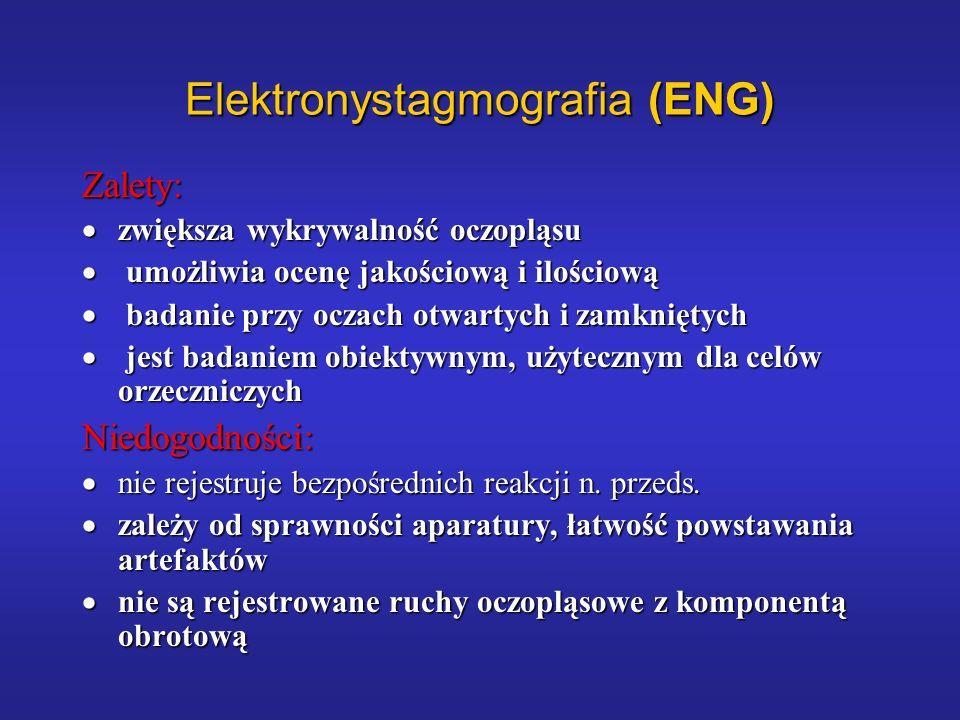 Elektronystagmografia (ENG) Zalety: zwiększa wykrywalność oczopląsu zwiększa wykrywalność oczopląsu umożliwia ocenę jakościową i ilościową umożliwia o