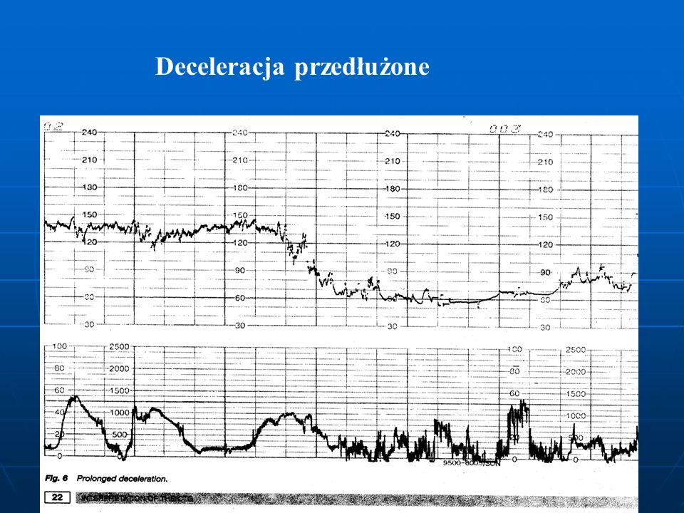 Deceleracja przedłużone