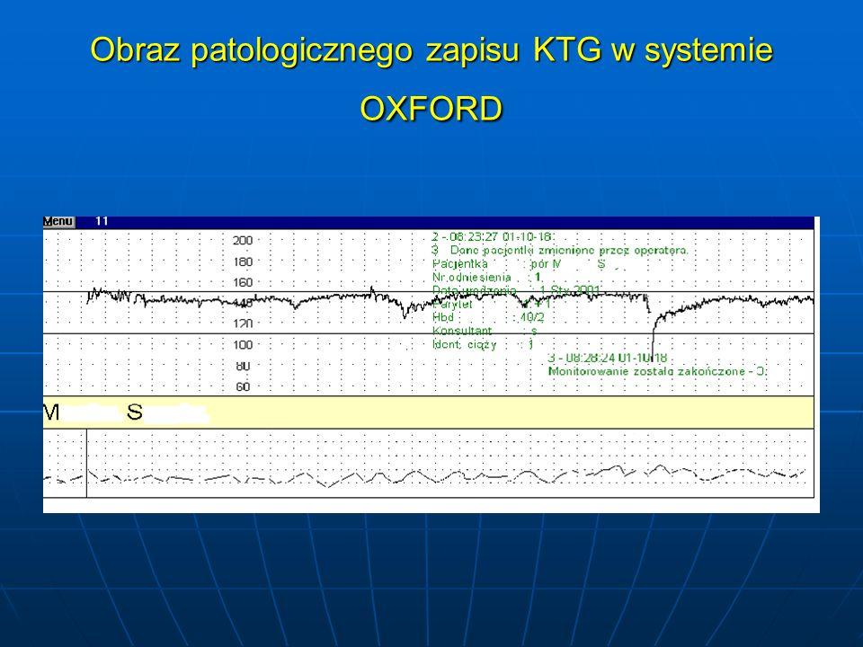 Obraz patologicznego zapisu KTG w systemie OXFORD