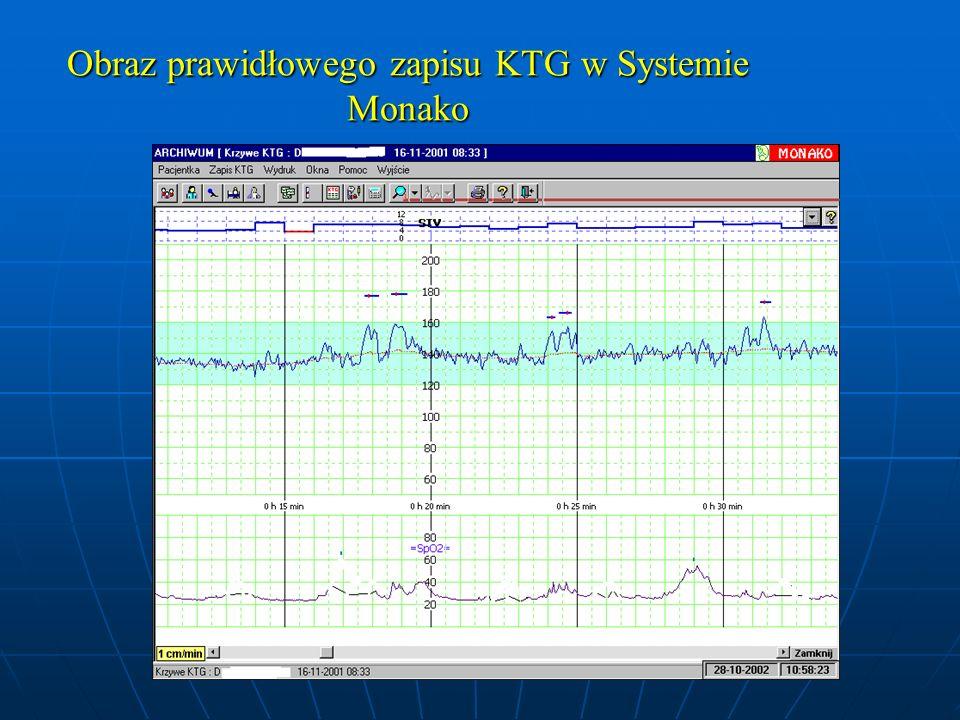 Obraz prawidłowego zapisu KTG w Systemie Monako