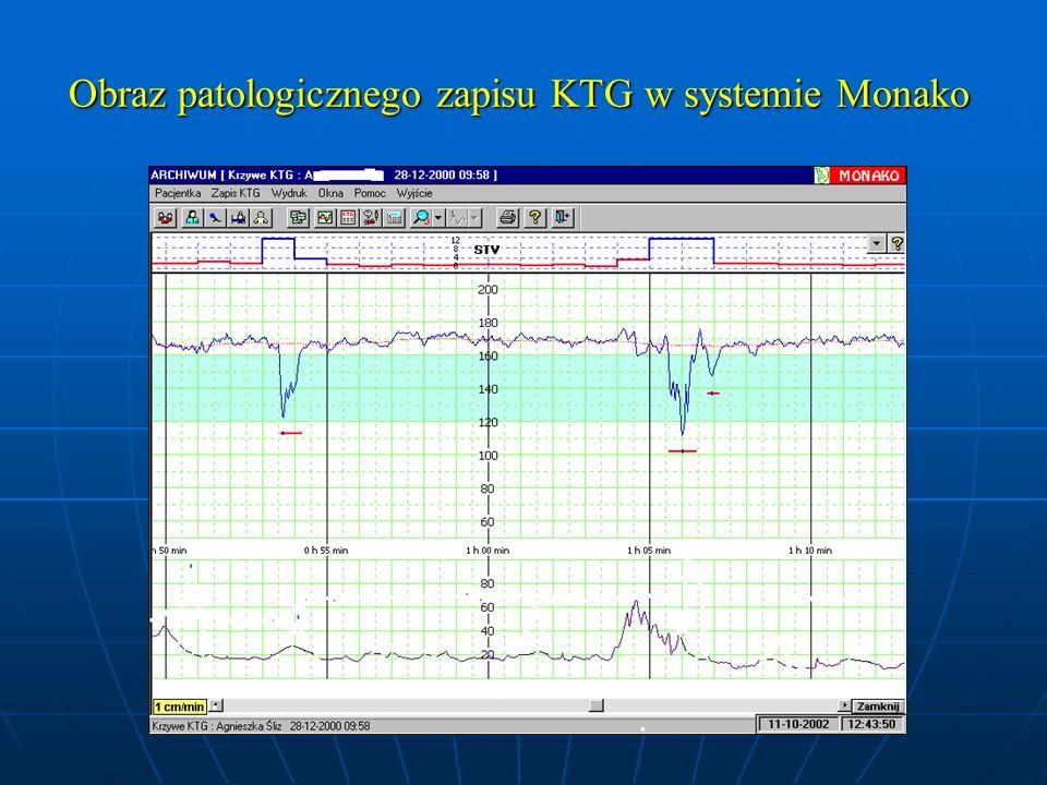 Obraz patologicznego zapisu KTG w systemie Monako