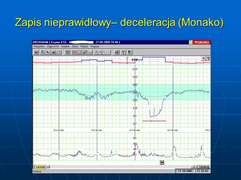 Zapis nieprawidłowy– deceleracja (Monako) Zapis nieprawidłowy– deceleracja (Monako)
