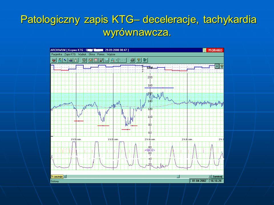 Patologiczny zapis KTG– deceleracje, tachykardia wyrównawcza. Patologiczny zapis KTG– deceleracje, tachykardia wyrównawcza.