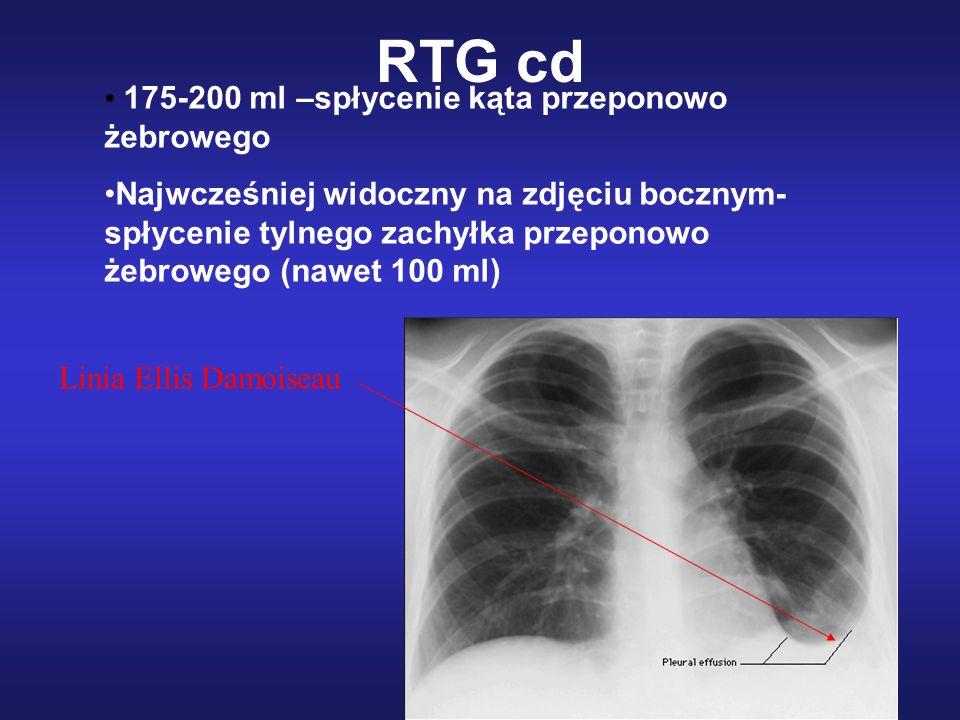 RTG cd 175-200 ml –spłycenie kąta przeponowo żebrowego Najwcześniej widoczny na zdjęciu bocznym- spłycenie tylnego zachyłka przeponowo żebrowego (nawe