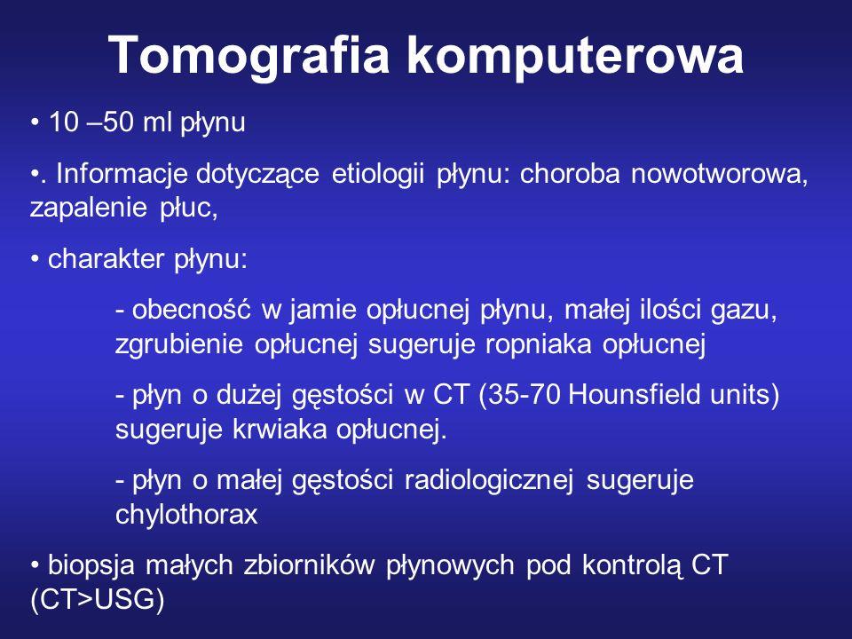 Tomografia komputerowa 10 –50 ml płynu. Informacje dotyczące etiologii płynu: choroba nowotworowa, zapalenie płuc, charakter płynu: - obecność w jamie