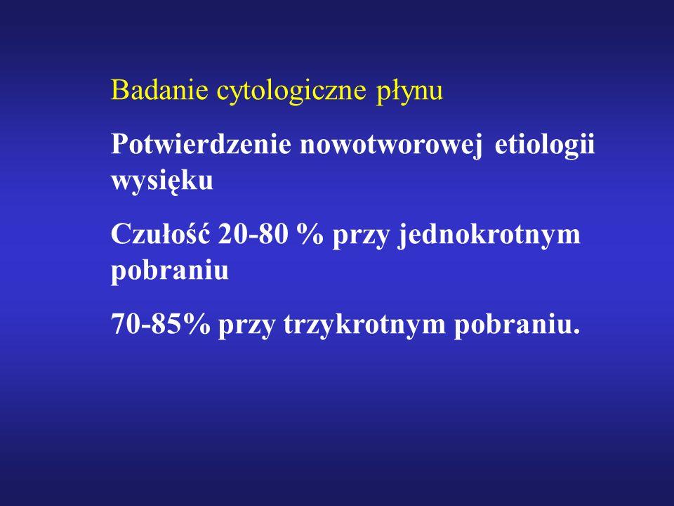 Badanie cytologiczne płynu Potwierdzenie nowotworowej etiologii wysięku Czułość 20-80 % przy jednokrotnym pobraniu 70-85% przy trzykrotnym pobraniu.