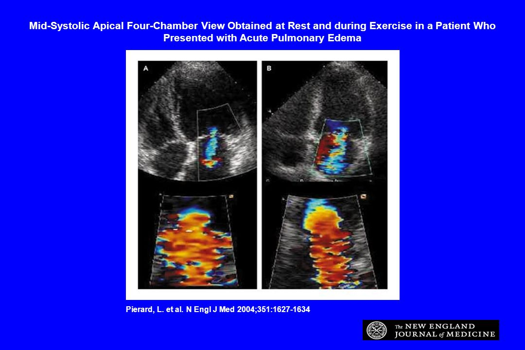 Mid-Systolic Apical Four-Chamber View Obtained at Rest and during Exercise in a Patient Who Presented with Acute Pulmonary Edema Pierard, L. et al. N