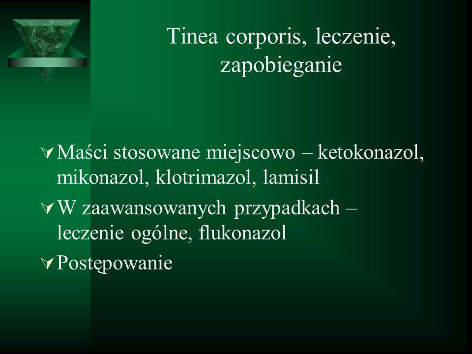 Tinea corporis, leczenie, zapobieganie Maści stosowane miejscowo – ketokonazol, mikonazol, klotrimazol, lamisil W zaawansowanych przypadkach – leczeni