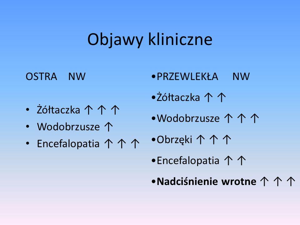 Objawy kliniczne OSTRA NW Żółtaczka Wodobrzusze Encefalopatia PRZEWLEKŁA NW Żółtaczka Wodobrzusze Obrzęki Encefalopatia Nadciśnienie wrotne