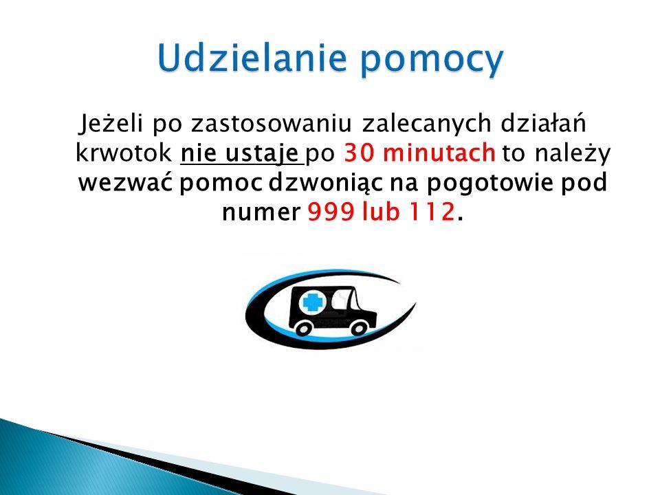 Jeżeli po zastosowaniu zalecanych działań krwotok nie ustaje po 30 minutach to należy wezwać pomoc dzwoniąc na pogotowie pod numer 999 lub 112.
