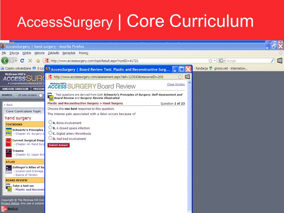 AccessSurgery | accesssurgery.com 1.Relacje video z operacji chirurgicznych: Columbia University College of Physicians and Surgeons Northwestern University Feinberg School of Medicine 2.Animacje chirurgiczne: Zollingers Atlas of Surgical Operations 3.Publikacje monograficzne: Schwartzs Principles of Surgery Trauma CURRENT Surgical Diagnosis & Treatment Maingot s Abdominal Operations Obesity Surgery: Principles and Practice Principles of Critical Care Smith s General Urology McGraw-Hill Manual: Colorectal Surgery 4.