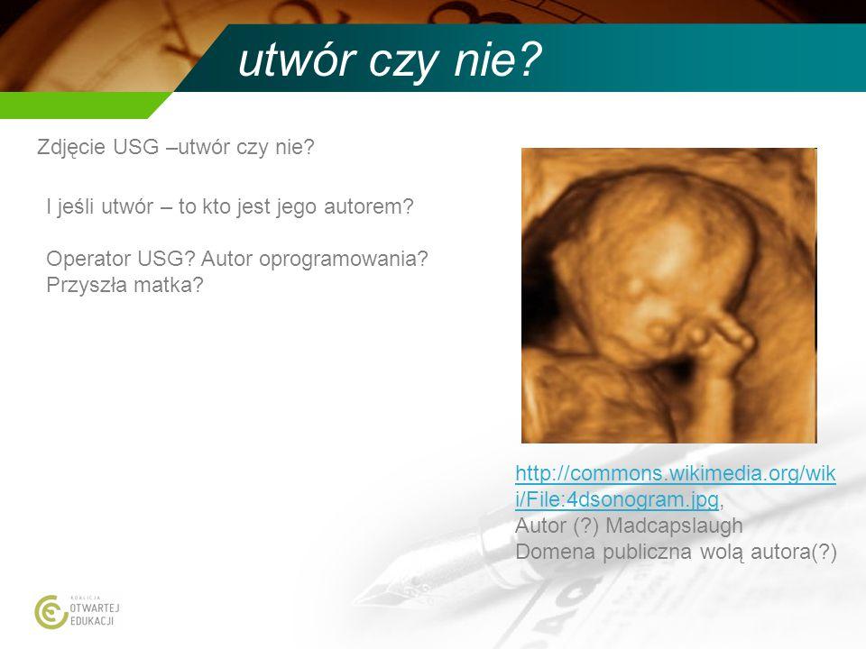 utwór czy nie? Zdjęcie USG –utwór czy nie? I jeśli utwór – to kto jest jego autorem? Operator USG? Autor oprogramowania? Przyszła matka? http://common