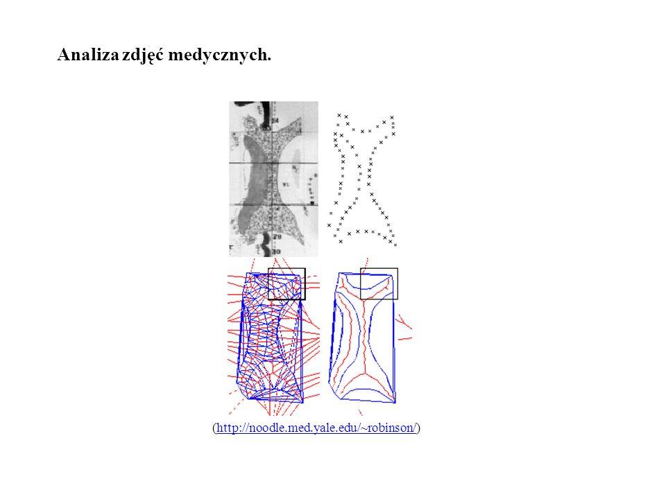 Analiza zdjęć medycznych. (http://noodle.med.yale.edu/~robinson/)