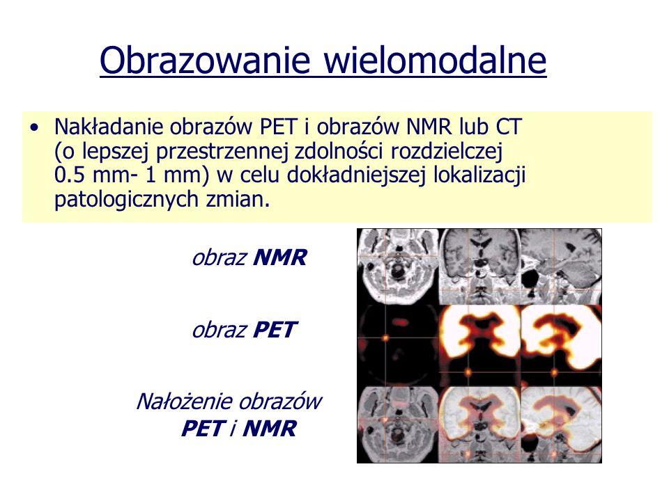 Obrazowanie wielomodalne Nakładanie obrazów PET i obrazów NMR lub CT (o lepszej przestrzennej zdolności rozdzielczej 0.5 mm- 1 mm) w celu dokładniejsz