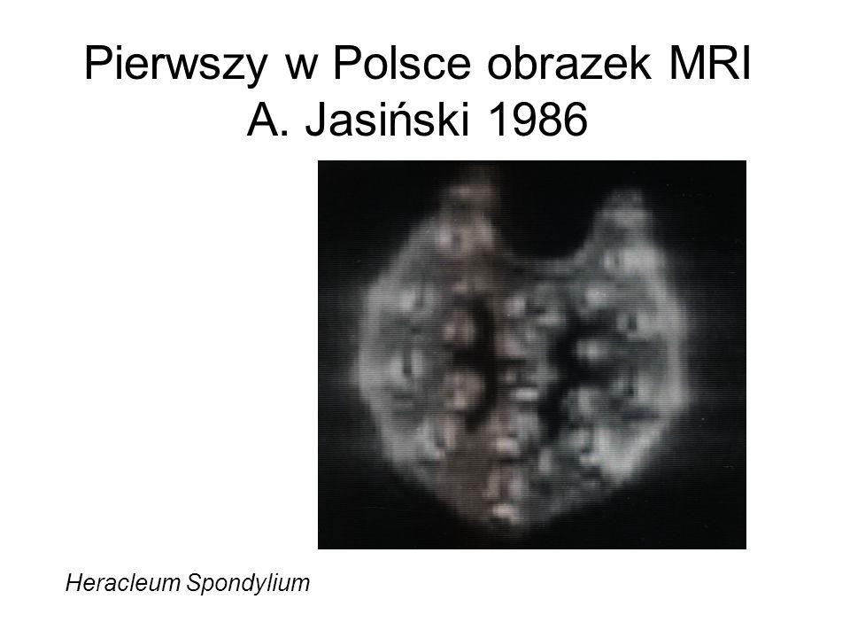 Pierwszy w Polsce obrazek MRI A. Jasiński 1986 Heracleum Spondylium