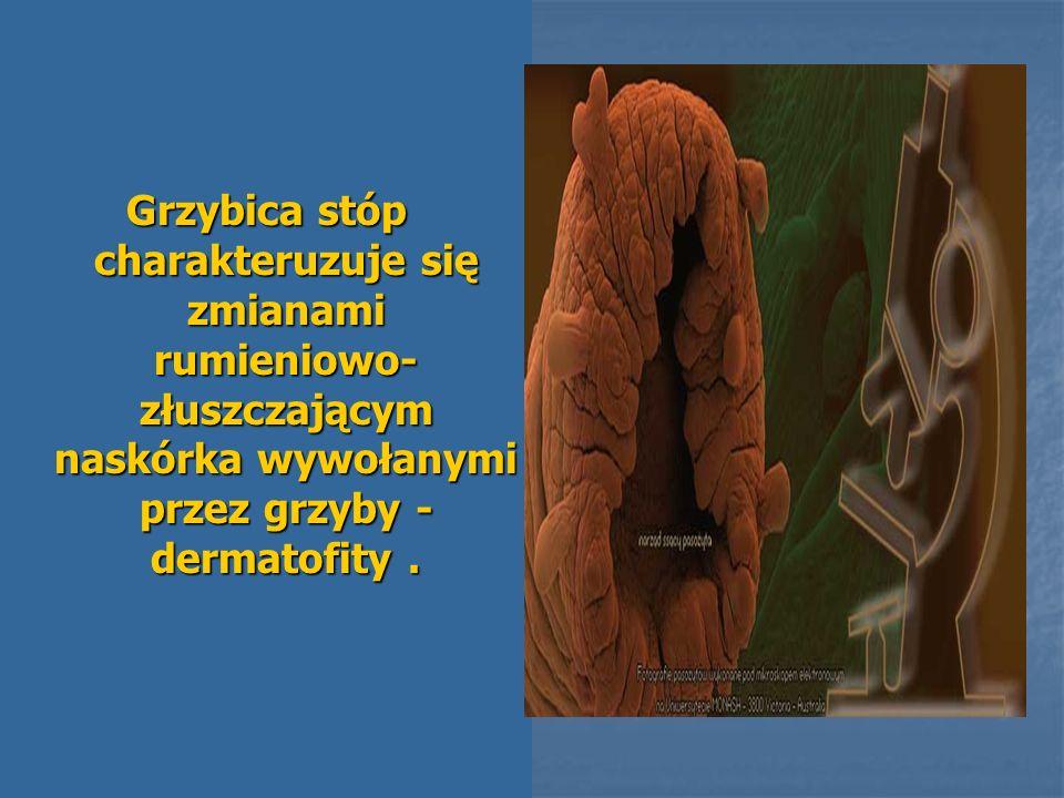 Grzybica stóp charakteruzuje się zmianami rumieniowo- złuszczającym naskórka wywołanymi przez grzyby - dermatofity.
