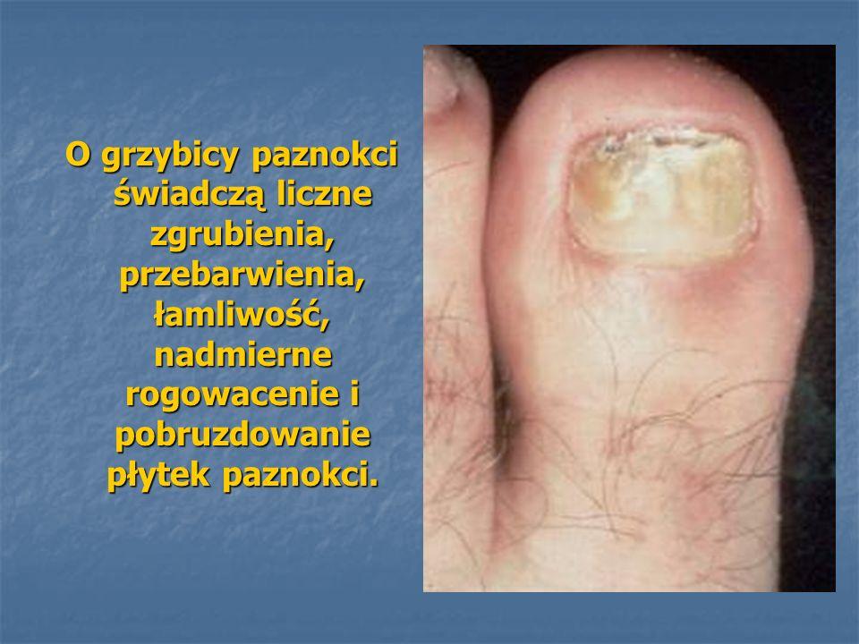 O grzybicy paznokci świadczą liczne zgrubienia, przebarwienia, łamliwość, nadmierne rogowacenie i pobruzdowanie płytek paznokci. O grzybicy paznokci ś