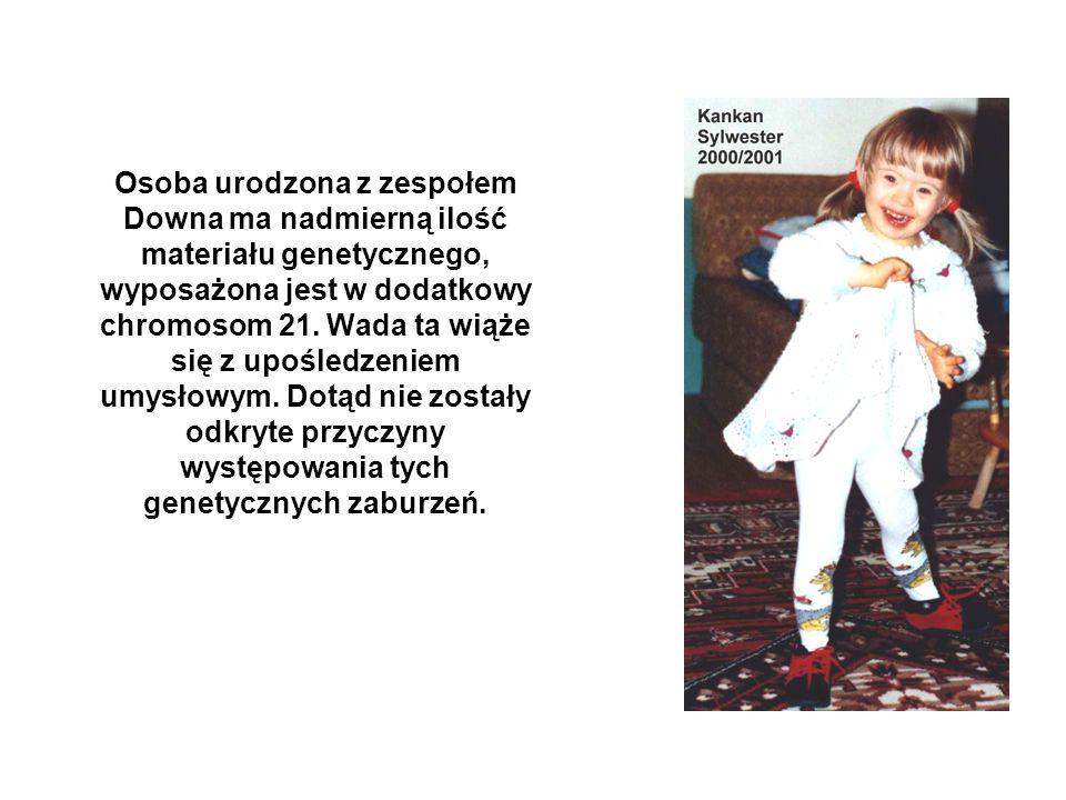 Osoba urodzona z zespołem Downa ma nadmierną ilość materiału genetycznego, wyposażona jest w dodatkowy chromosom 21. Wada ta wiąże się z upośledzeniem