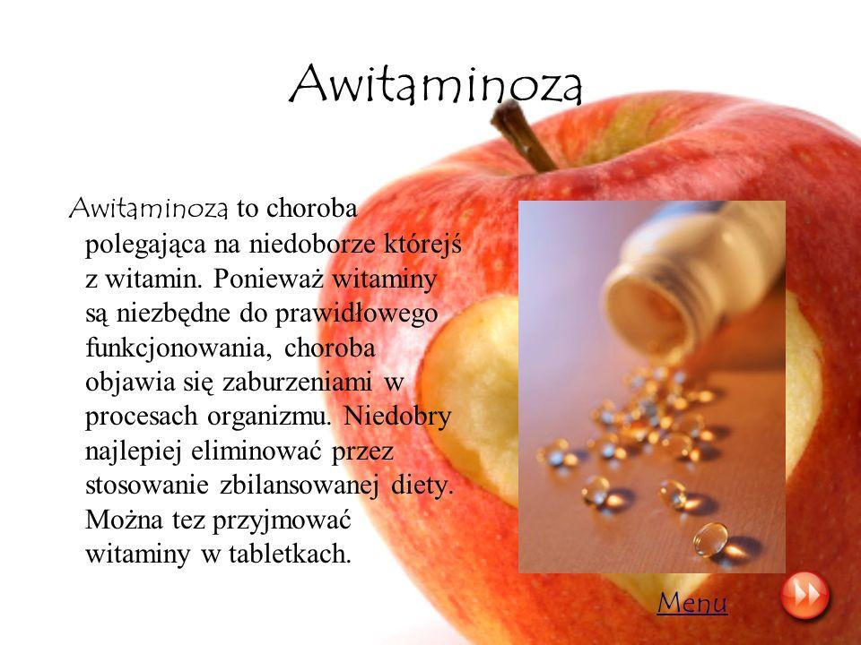 Awitaminoza Awitaminoza to choroba polegająca na niedoborze którejś z witamin. Ponieważ witaminy są niezbędne do prawidłowego funkcjonowania, choroba