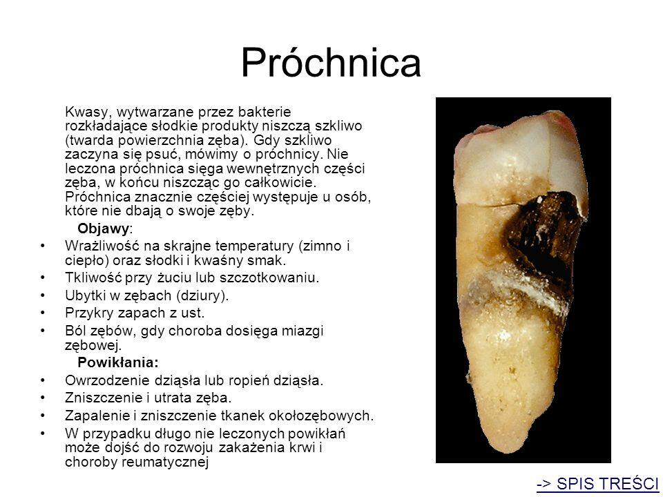 Próchnica Kwasy, wytwarzane przez bakterie rozkładające słodkie produkty niszczą szkliwo (twarda powierzchnia zęba). Gdy szkliwo zaczyna się psuć, mów