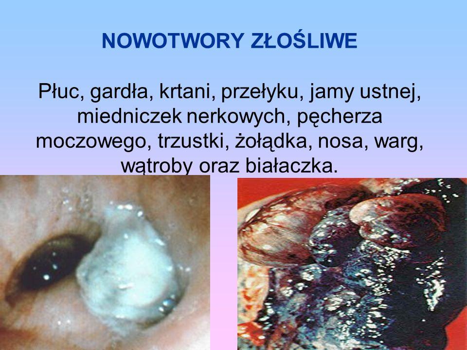 NOWOTWORY ZŁOŚLIWE Płuc, gardła, krtani, przełyku, jamy ustnej, miedniczek nerkowych, pęcherza moczowego, trzustki, żołądka, nosa, warg, wątroby oraz