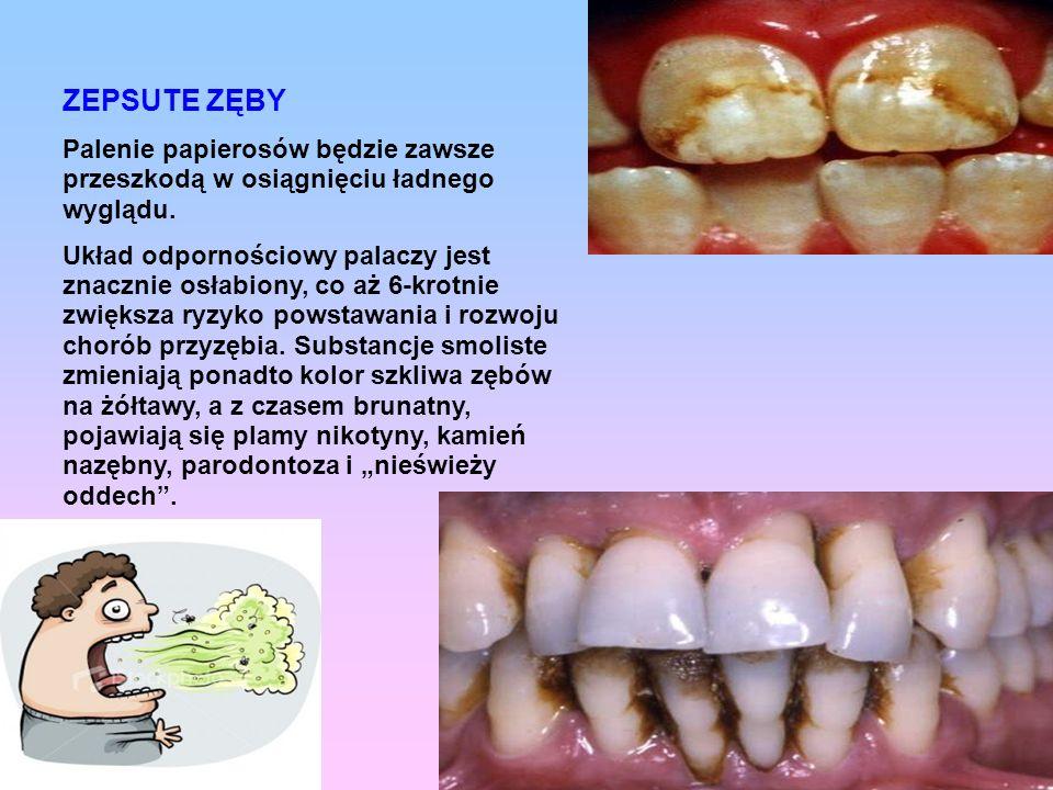 ZEPSUTE ZĘBY Palenie papierosów będzie zawsze przeszkodą w osiągnięciu ładnego wyglądu. Układ odpornościowy palaczy jest znacznie osłabiony, co aż 6-k